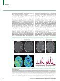 Seminar Primary brain tumours in adults - Page 6