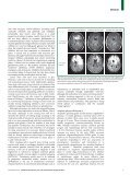Seminar Primary brain tumours in adults - Page 7