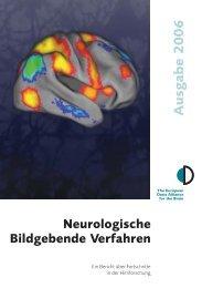 Neurologische Bildgebende Verfahren - Dana Foundation