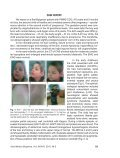 a clinical case with pmm2-cdg and dandy-walker malformation - Page 2