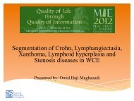 Segmentation of Crohn, Lymphangiectasia, Xanthoma, Lymphoid ...