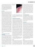 Hypertrophe Narben und Keloide in der täglichen Praxis - Seite 2