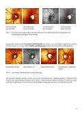 Beurteilung HRT-Ausdruck 1 - Augenärzte Thun und Umgebung - Seite 4