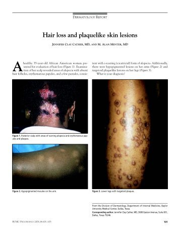 Hair loss and plaquelike skin lesions - Baylor Health Care System