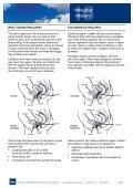 PROLAPSE PROLAPS - Page 2