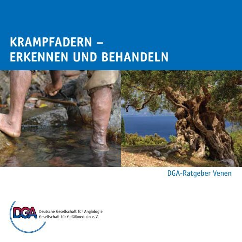 krampfadern - der Deutschen Gesellschaft für Angiologie