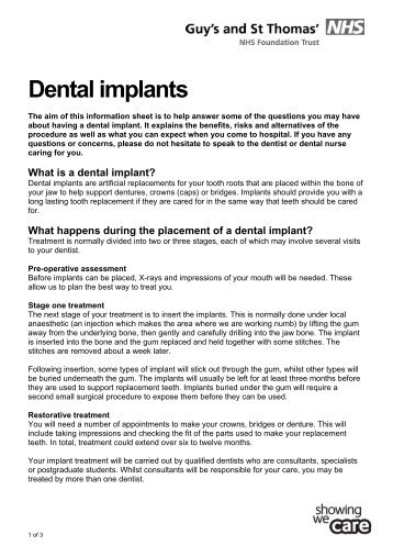 Dental implants - Guy's and St Thomas'
