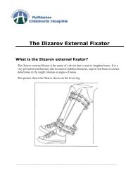 Ilizarov External Fixator - Hamilton Health Sciences