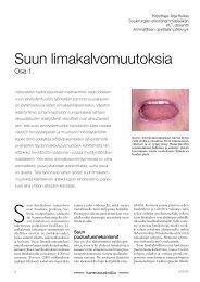 Osa 1. Suun limakalvomuutoksia