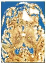 Posaconazol zur Behandlung invasiver ... - Hauner Journal