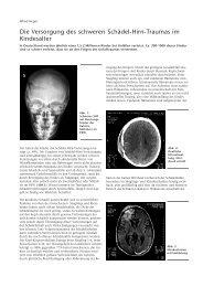 Die Versorgung des schweren Schädel-Hirn ... - Hauner Journal
