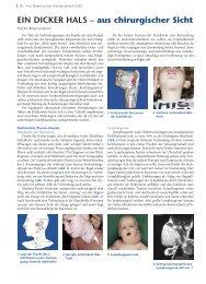 EIN DICKER HALS – aus chirurgischer Sicht - Hauner Journal