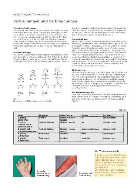 Verbrühungen und Verbrennungen - Hauner Journal