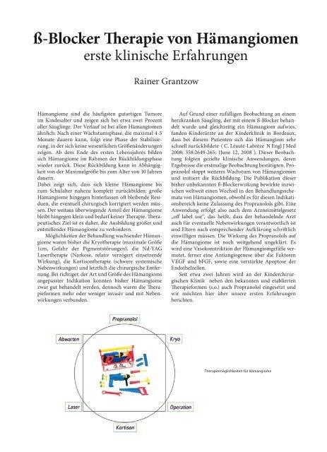 ß-Blocker Therapie von Hämangiomen - Hauner Journal