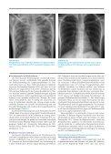 Lungentransplantation bei Mukoviszidose - Hauner Journal - Page 2