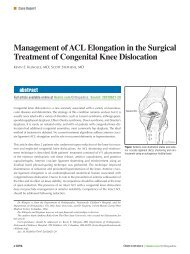 Management of ACL Elongation in the Surgical Treatment ... - Healio