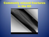 Missed Fractures in ED - Oklahoma State University Center for ...