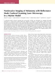Noninvasive Imaging of Melanoma with Reflectance Mode Confocal ...