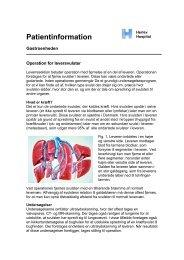 Operation for leversvulster - Herlev Hospital