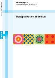 Transplantation af delhud - Herlev Hospital