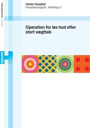 Operation for løs hud efter stort vægttab - Herlev Hospital
