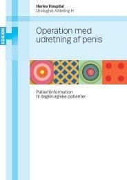 Operation med udretning af penis - Herlev Hospital
