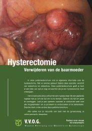 Hysterectomie (verwijderen van de baarmoeder)