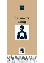 as5 - Farmer's lung - HO - Higiene Ocupacional