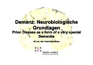 Prion Disease