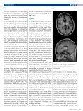 Opportunistische Infektionen – Teil 2 Zerebrale ... - HIV & More - Seite 2