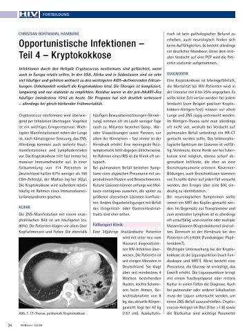 Opportunistische Infektionen – Teil 4 – Kryptokokkose - HIV & More