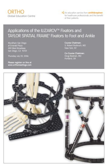 TAYLOR SPATIAL FRAME: Butt Frame Configuration and Application