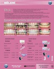 bělení - Hu-Fa Dental