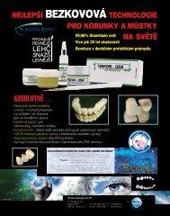 fazetování - Hu-Fa Dental