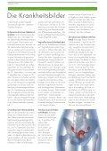 + Schwerpunktthema: Gynäkologische tumorerkrankungen - Seite 5