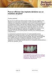 Peut-on effectuer des implants dentaires sur un maxillaire atrophié?