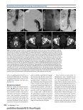 Elektronischer Sonderdruck für Die interventionelle/endovaskuläre ... - Seite 7