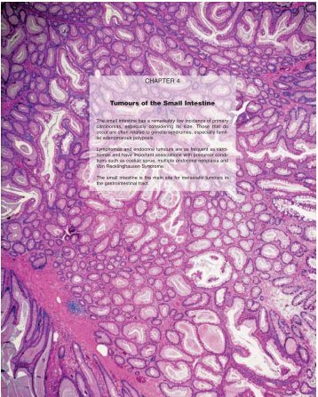CHAPTER 4 Tumours of the Small Intestine - iarc