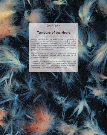 Tumours of the Heart - IARC