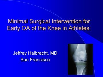 Minimal Surgical Intervention For Early OA Of The Knee In - IASM