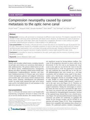Mulifocal Motor Neuropathy Neuropathy Definition