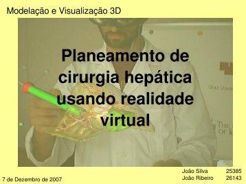 Planeamento de cirurgia hepática usando realidade virtual - Sweet