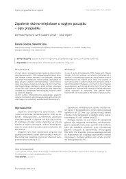 Zapalenie skórno-mięśniowe o nagłym początku – opis przypadku