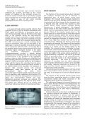 Unusual longitudinal fracture of coronoid process of mandible: A ... - Page 2