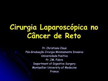 Neoplasia do Reto X Laparoscopia - IJP