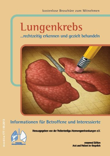 Lungenkrebs - patienten-bibliothek.de