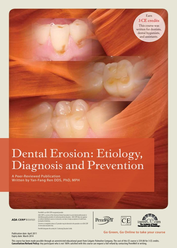 a research on dental erosion Moved permanently the document has moved here.