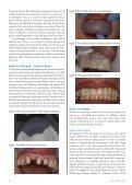 Contemporary Temporization - IneedCE.com - Page 4