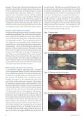Contemporary Temporization - IneedCE.com - Page 6