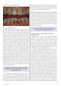 Composite Restorations: Subtleties in Shade and ... - IneedCE.com - Page 3